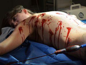 chirurg-moord2